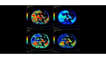Advanced Visualization Clinical Image - AW CT Myorcardial Perfusion Application