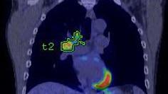 advanced visualization pet vcar clinical.