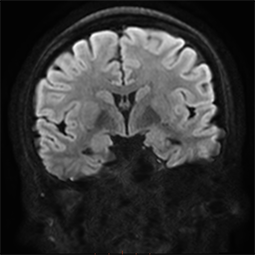 product-product-categories-magnetic-resonance-imaging-signa premier-3.png